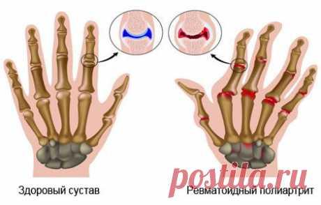 Полиартрит суставов: симптомы и лечение заболевания народными средствами.