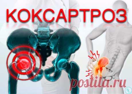 Коксартроз тазобедренного сустава 1,2 и 3 степени, симптомы, лечение, операция