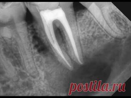 """""""Киста"""" зуба. Почему возникает киста после лечения каналов? Как лечить кисту? Киста зуба что это?"""