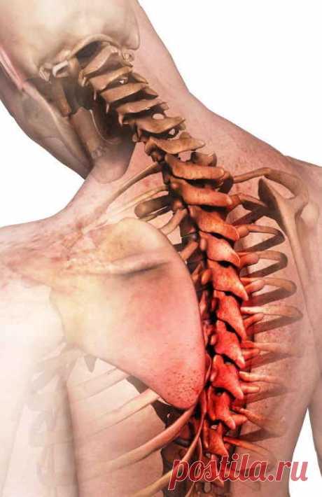 Лук сварил — об остеохондрозе и артрите забыл! На боли в суставах, как бы их ни называли, — остеохондрозом, артритом, артрозом или подагрой — жалуются довольно часто. Мне помог забыть об этой неприятности простой рецепт, который предлагаю вашему вниманию...