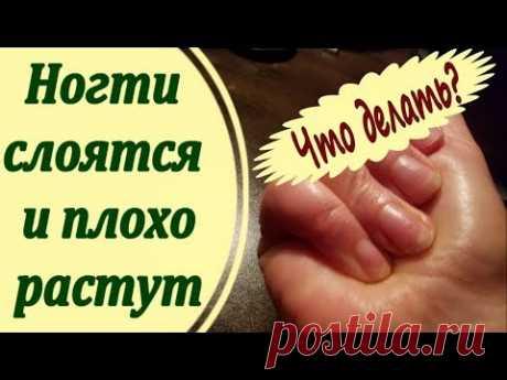 Слабые, слоящиеся ногти, которые к тому же плохо растут...что с этим делать? Не расстраивайтесь, проблема решается .... Делюсь своим личным опытом - руки пос...
