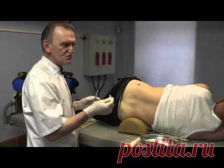 Лечение грыжи без операции