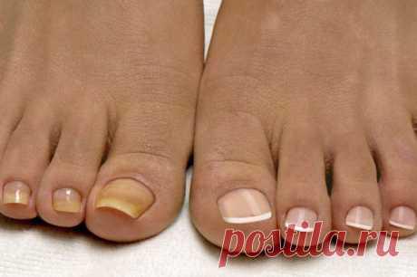 На начальной стадии, пока ноготь поврежден менее чем на 1/3-1/2 глубины, болезнь можно вылечить местными препаратами и даже народными способами. Начальная стадия грибка ногтей, как выглядит на фото...  Начальная стадия грибка ногтей на руках – это патология, которой характерны потеря здорового блеска, ломкость, изменения цвета и толщины ногтевой пластина. Зная симптомы патологии