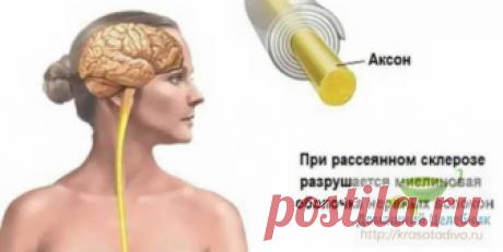 Народные средства для улучшения мозгового кровообращения: скажи «нет» слабоумию, рассеянности и немощи