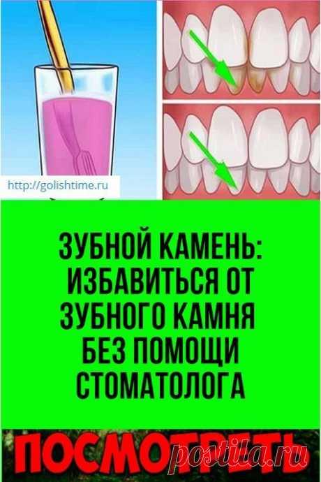Зубной камень: избавиться от зубного камня без помощи стоматолога.Попробуйте сами.Как правило, стоматолог удаляет зубной камень, с которым не справляется зубная щетка.  Тем не менее если вы понимаете, что визит к врачу состоится не так скоро, не стесняйтесь брать быка за рога!Избавьтесь от него самостоятельно, используя обычные домашние