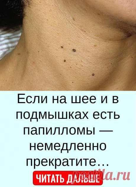 Если на шее и в подмышках есть папилломы — немедленно прекратите…