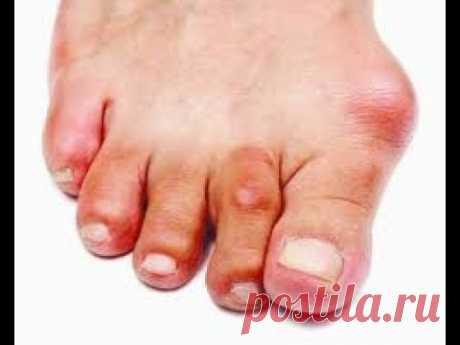 Косточка на большом пальце стопы.