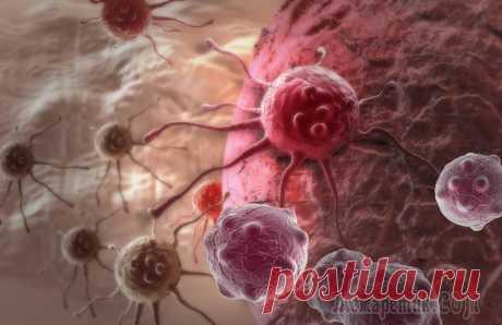 ТОП-30 лучших способов заболеть раком
