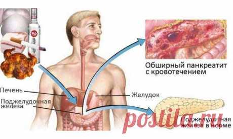 Моя поджелудочная железа работает, как часы! Смотри, как я ее вылечила. Принимайте… Поджелудочная железа – орган пищеварительной системы человека. Это крупная железа, которая выполняет внутрисекреторную (эндокринную) и