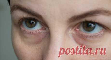 Убрать синяки под глазами: косметология, описание процедур, противопоказания, отзывы . Милая Я