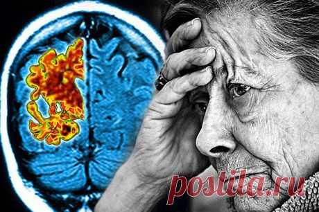 Предотвращение болезни Альцгеймера может быть проще   Всегда в форме!