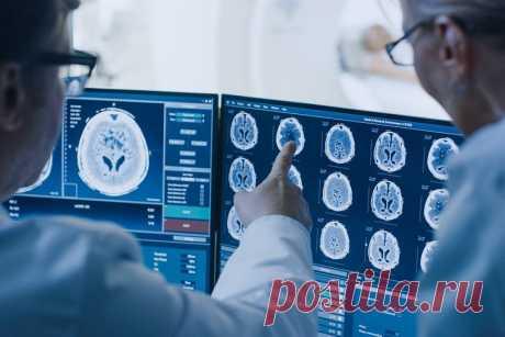 6 способов защиты мозга от болезни Альцгеймера и деменции: контроль