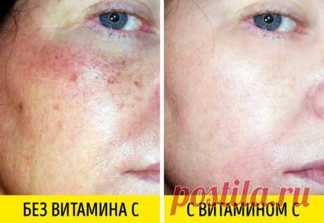 Мощное антивозрастное действие - 3 препарата, которые борются с морщинами не хуже «уколов красоты»