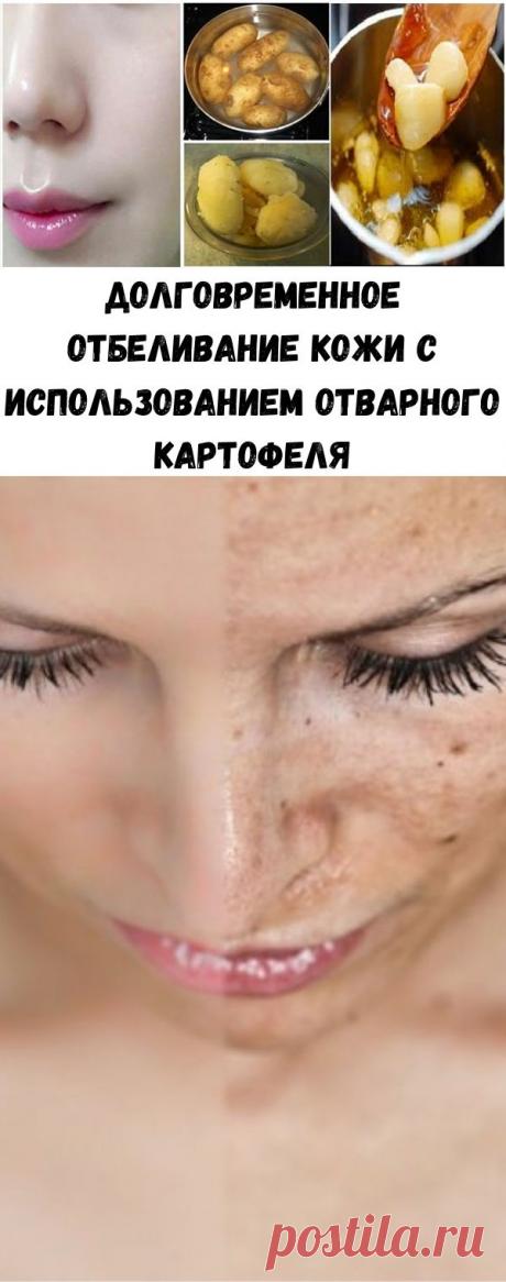 Долговременное отбеливание кожи с использованием отварного картофеля - Полезные советы красоты