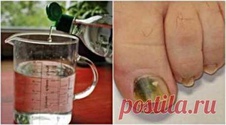 Избавьтесь от грибка ногтя с этим натуральным трехкомпонентным рецептом Онихомикоз или грибок ногтя — грибковая инфекция ногтя. Это обычное состояние, которое возникает в результате атаки дерматофитов, дрожжей или не дерматофитовой плесени. Вначале у вас могут не возникнуть...