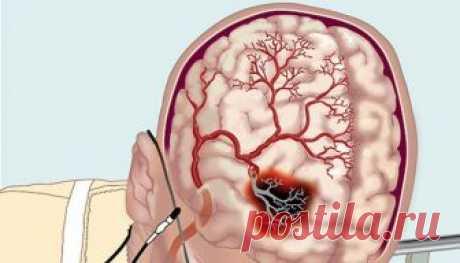 Как улучшить мозговое кровообращение с помощью народных средств? Нарушение мозгового кровообращения Гипертония и атеросклероз — две основные причины, приводящие к нарушению мозгового кровообращения. Именно из-за них развивается паралич, падает зрение, теряется координация, нарушается движение, возникает инсульт. Хронические сосудистые заболевания мозга называются дисциркуляторной энцефалопатией. Ее симптомы развиваются медленно и не всегда заметны не только окружающим. Час...