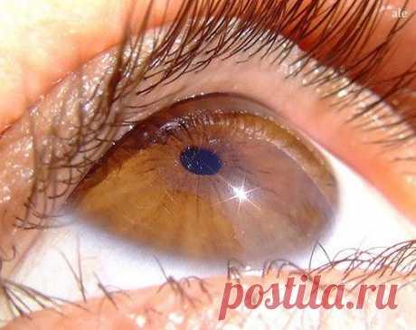 Народные средства при ослаблении зрения.