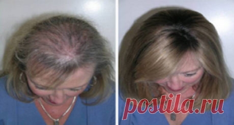 Полезные советы: Это масло удивительно для роста волос, ресниц и бровей