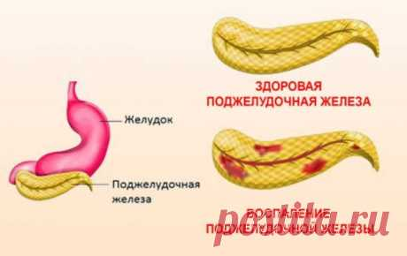 Случай излечения воспаления поджелудочной железы при помощи бархатцев и золотого уса | Краше Всех