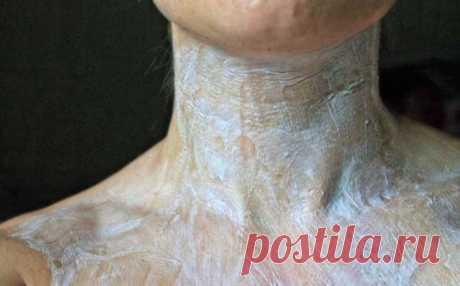 Que no cuelgue por las bolitas: preparamos el medio natural para la rejuvenescencia del cuello
