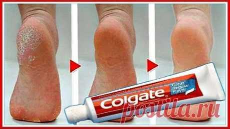 Намажь пятки зубной пастой! Эффект УДИВИТ!!!