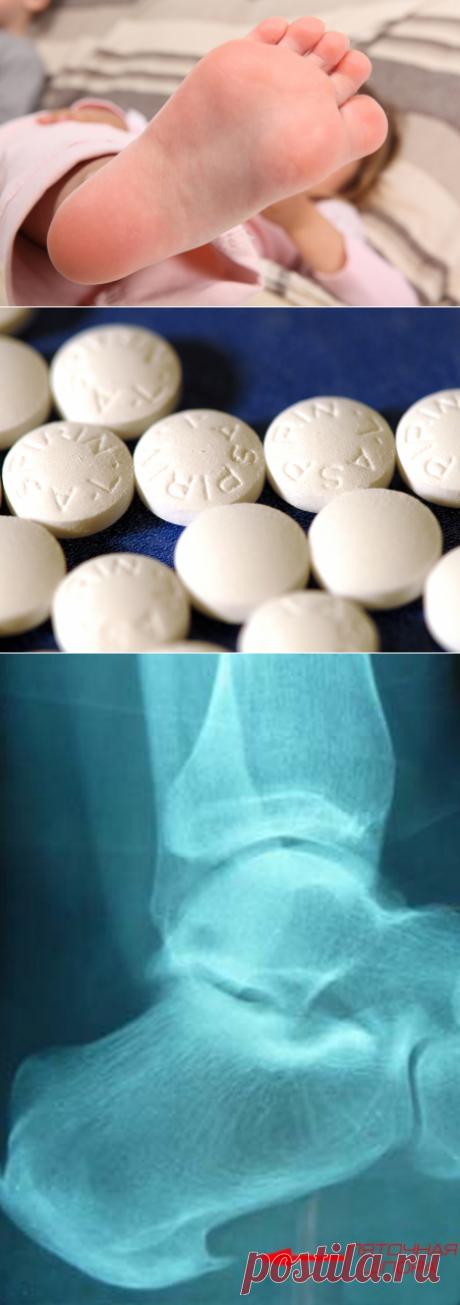 Aspirin against a calcaneal spur