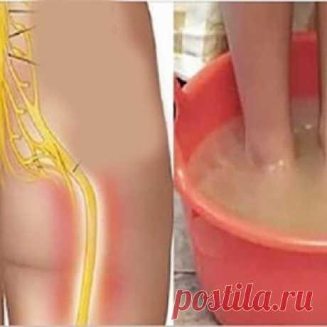 Исцелите боль в седалищном нерве за 10 минут, используя естественный метод - МирТесен