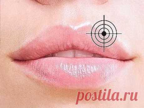 При герпесе (простуда на губе) воспользуйся корвалолом. — Полезные советы