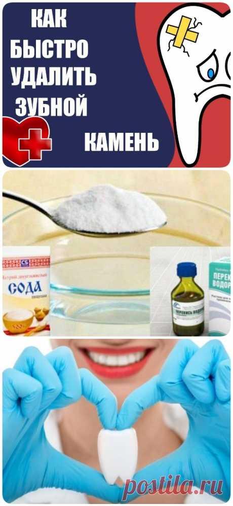 Проверенное средство для 100% удаления зубного камня - lucheedlavas.ru
