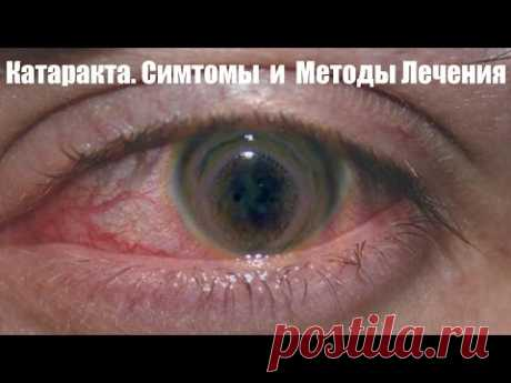 Cataract. Simtoma, Signs and Methods of Treatment - YouTube