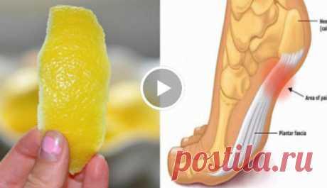 ¡La piel del limón puede quitar los dolores en las articulaciones para siempre! ¡2 mega el modo! ¡| Mí amable la Piel del limón puede quitar los dolores en las articulaciones para siempre! Todos nosotros sabemos que los limones son realmente el elixir de la salud. ¿En realidad, es probable, sabéis que él se acercan perfectamente para los jugos por la mañana ante el desayuno, ¿no es así?? ¡Empleando los limones cada día, nos regala realmente la salud! Esta fruta es las frutas más cultivadas en el mundo. Él es completo de los minerales y las vitaminas, tales como Con Y...