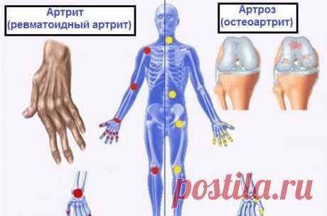 Это нужно знать!!! В чем разница между артрозом, артритом и остеопорозом?   Всегда в форме!