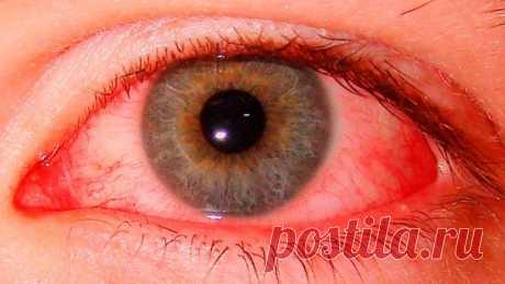 Воспаление глаз лечится «на раз». Рецепты народной медицины