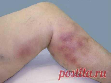 Мазь которая вылечит ноги от варикоза! — Всем Интересно