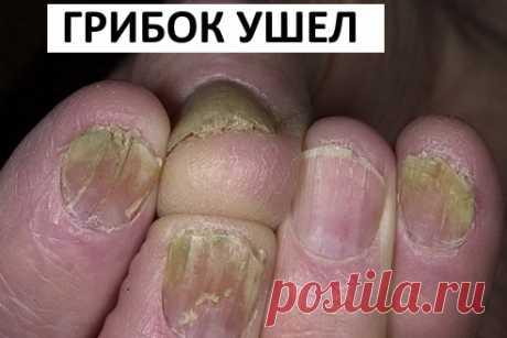 Чудодейственное ощелачивание организма: как принимать соду   Naget.Ru