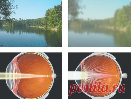 Народные средства лечения катаракты Может быть, некоторые из вас помнят из курса школьной анатомии устройство человеческого глаза? Достаточно сложный орган, состоящий из нескольких составляющих, позволяющих нам видеть все то, что мы видим...