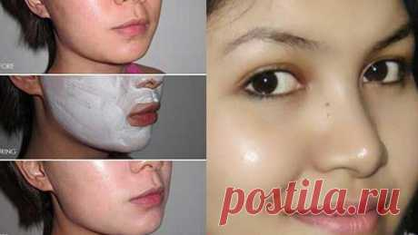 Используйте 3 ночи подряд и получите сияющую кожу, без пятен, как у нее Что вам нужно для того, чтобы удалить пятна с вашего лица?