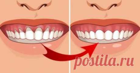 4 супер эффективных средства, которые устранят оголение зуба Как только заметили оголение зуба, немедленно начинайте действовать! Это может привести к потере зуба!  Исследования говорят, что основная причина оголения зуба – неправильная гигиена полости рта. Дру…