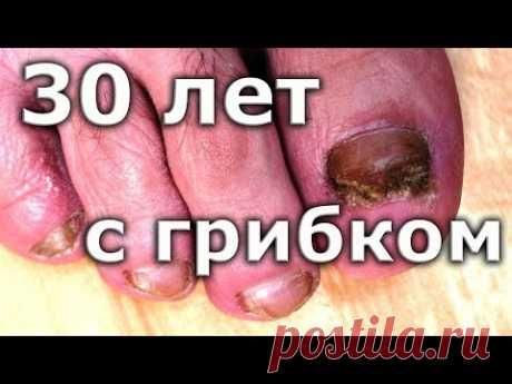 ВЫЛЕЧИЛ грибок ногтей спустя 30 лет / Лечение грибка ногтей на ногах