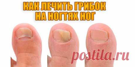 Как лечить грибок на ногтях ног | Полезные советы
