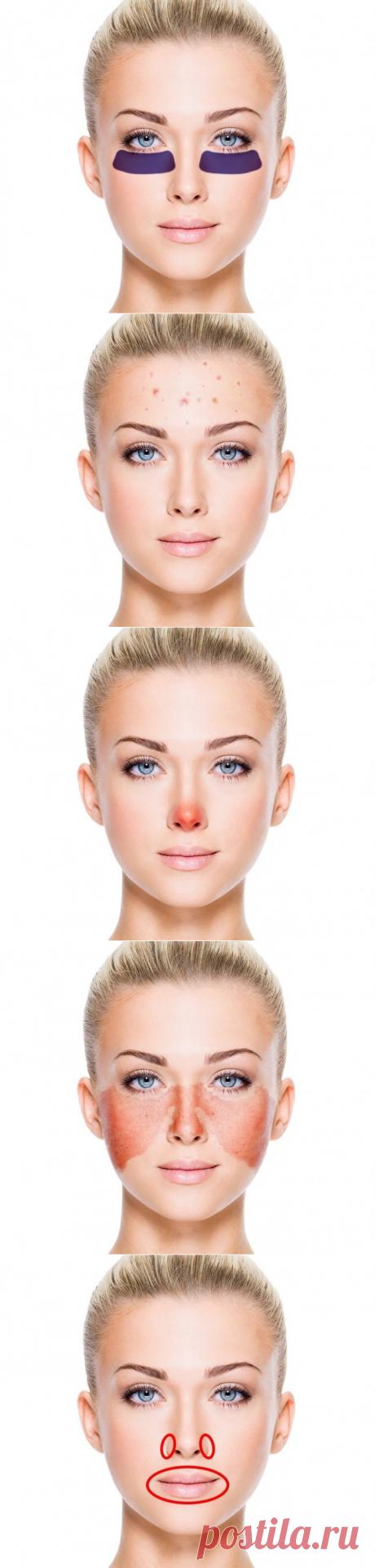 Сигналы организма о болезнях, которые отражаются на нашем лице / Все для женщины