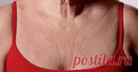 3 средства быстро устранят морщины на груди и шее   Я в восторге! Эти средства действительно работают!  Морщины на груди и шее очень распространены по мере того, как наш организм стареет, так как кожа теряет эластичность и упругость. Хотя мы не можем…
