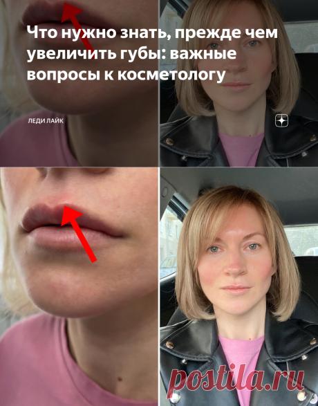 Что нужно знать, прежде чем увеличить губы: важные вопросы к косметологу   Леди Лайк   Яндекс Дзен