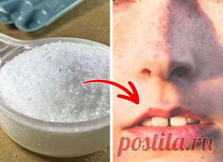 9 простых ингредиентов, которые помогут избавиться от волос на лице в домашних условиях | Всегда в форме!