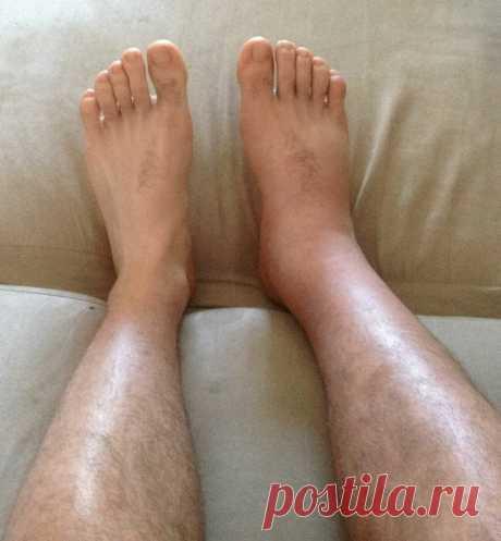 Делюсь своим опытом лечения отека нижних конечностей   В Небеса   Яндекс Дзен