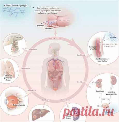 Симптомы, которые указывают на разрастание дрожжей в организме / Будьте здоровы