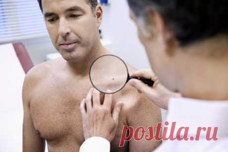 Аллокин альфа отзывы при лечении папиллом. Средство от бородавок и папилом