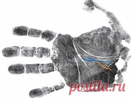 Как узнать о болезнях по руке: секреты хиромантии