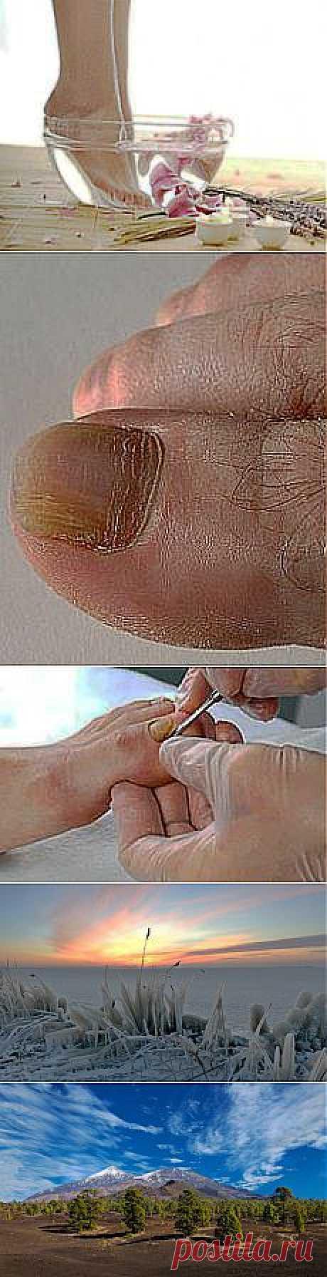 Как размягчить ногти на ногах: способы лечения и другие материалы. Новое в Вашей подборке на Постила.ru - arletta1951@mail.ru - Почта Mail.Ru