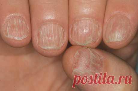 Заразен ли грибок ногтей Спрашивая доктора, заразен ли грибок ногтей на руках при рукопожатии, получите положительный ответ и дополнительно рекомендации, как его лечить. ... Спрашивать, заразен ли грибок ногтей на руках и ногах, даже не стоит, поскольку онихомикоз относится к инфекционным заболеваниям, быстро